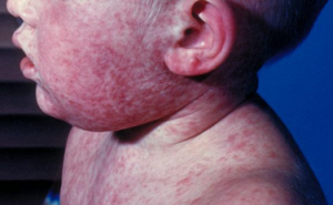 measles rash_infant